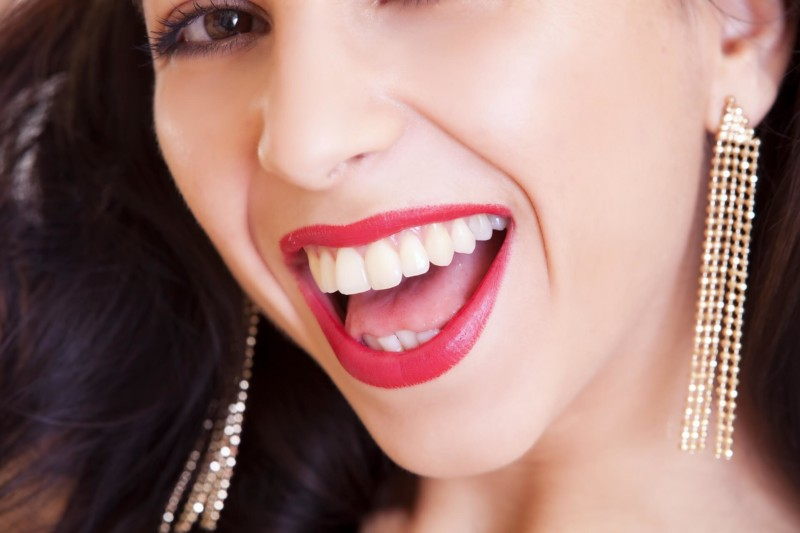 teeth whitening dublin